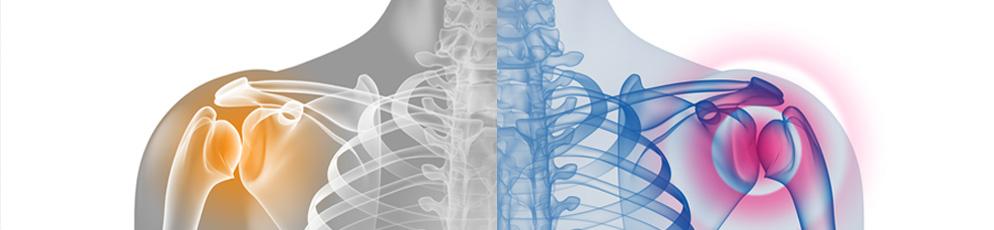 Schulterchirurgie und Schulter-Behandlung im orthopädischen Zentrum Dr. A. Rümelin in Frankfurt. Stationäre und ambulante Versorgung. - Diagnostik, Schulter, Schulterchirurgie, Schultergelenk