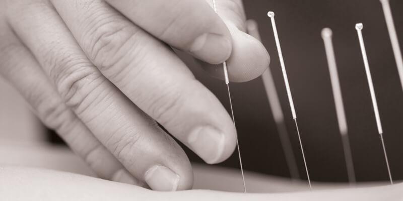 Akupunktur für Kassenpatienten